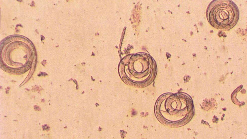 papiloma virus kod djece cum se vindecă papiloamele de pe corp